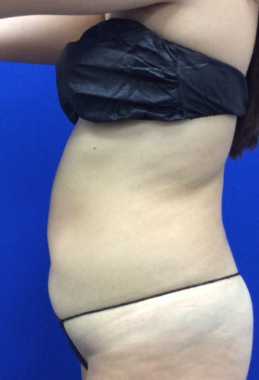Before-Perfect for a tummy tuck