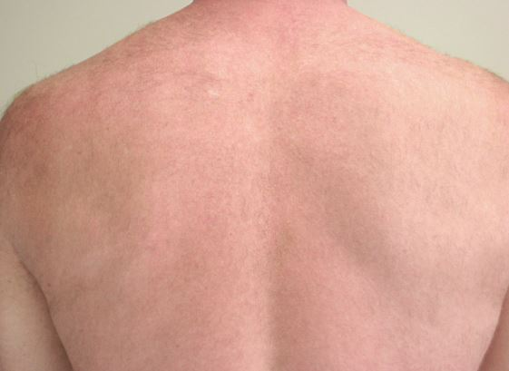 After-Back results after four sessions